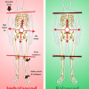 Kinetic Chain Release Therapy